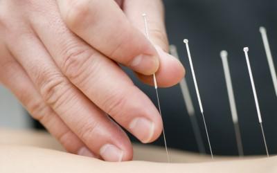 L'acupuncture, un traitement en toute complémentarité.